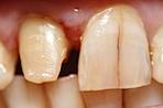 Zahnstumpf Frontzahn nem