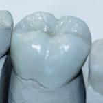 Zahnersatz : Zahnarzt Wiesbaden