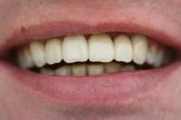 Zahnersatz mit individuellen Schneidekanten