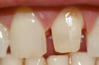 der beschliffene Zahnstumpf